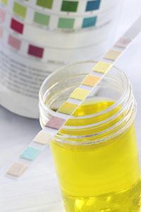 Test urinaire - Bandelette